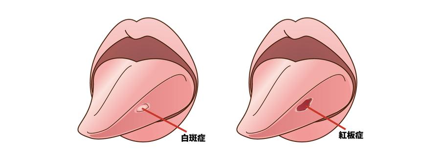 の しびれ 舌